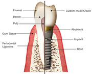 cosmetic implant dentist, lingual orthodontist in agra, kanpur, lucknow,